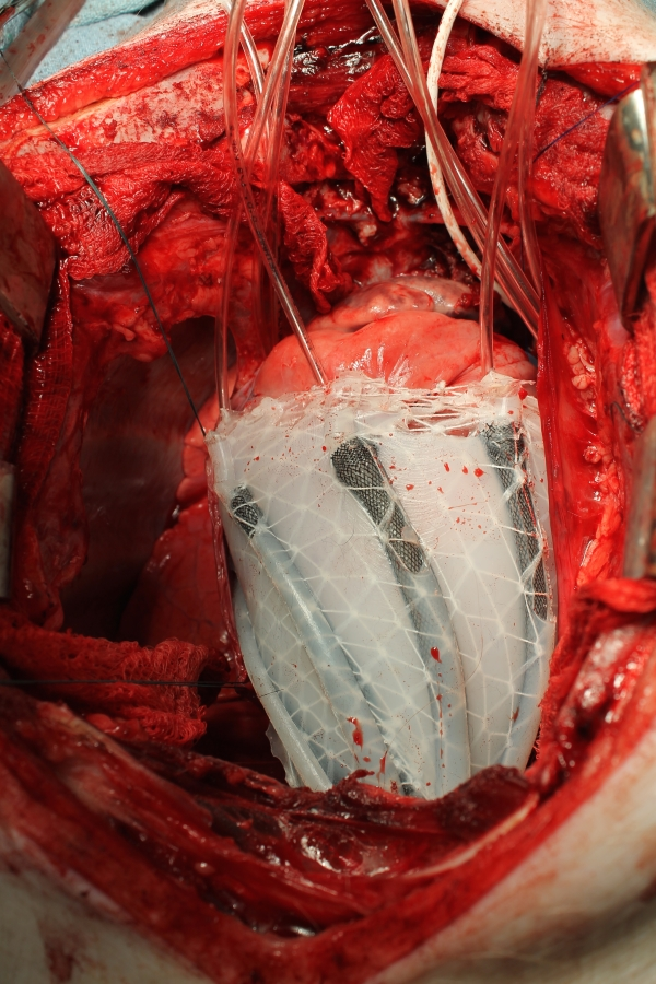 Projekt biokompatibilnog umjetnog srca