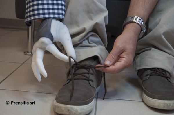 Protetska ruka kontrolirana mozgom